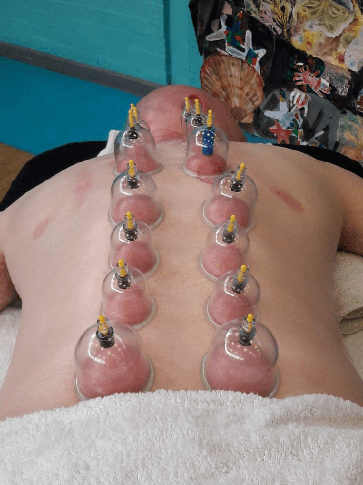cupping Adrian